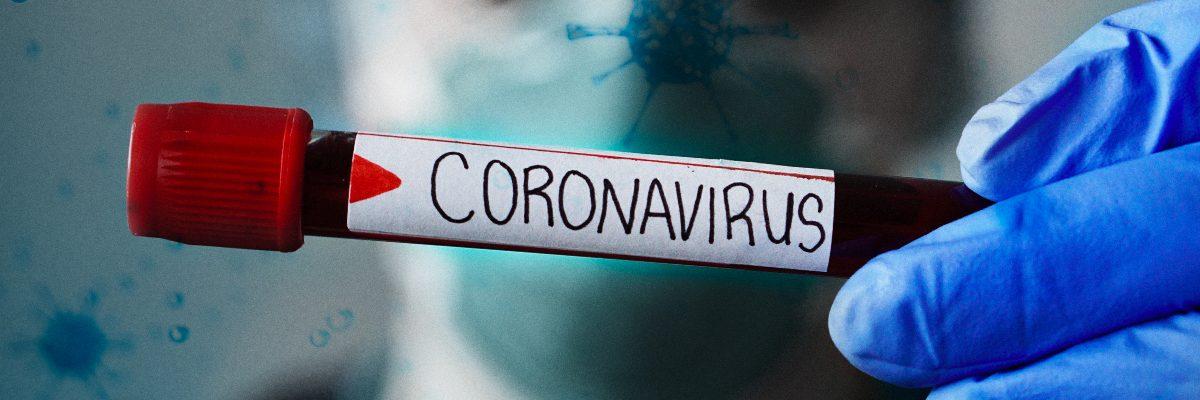 """CORONAVIRUS: ESTESA A TUTTO IL PAESE LA COSIDDETTA """"ZONA ROSSA"""""""
